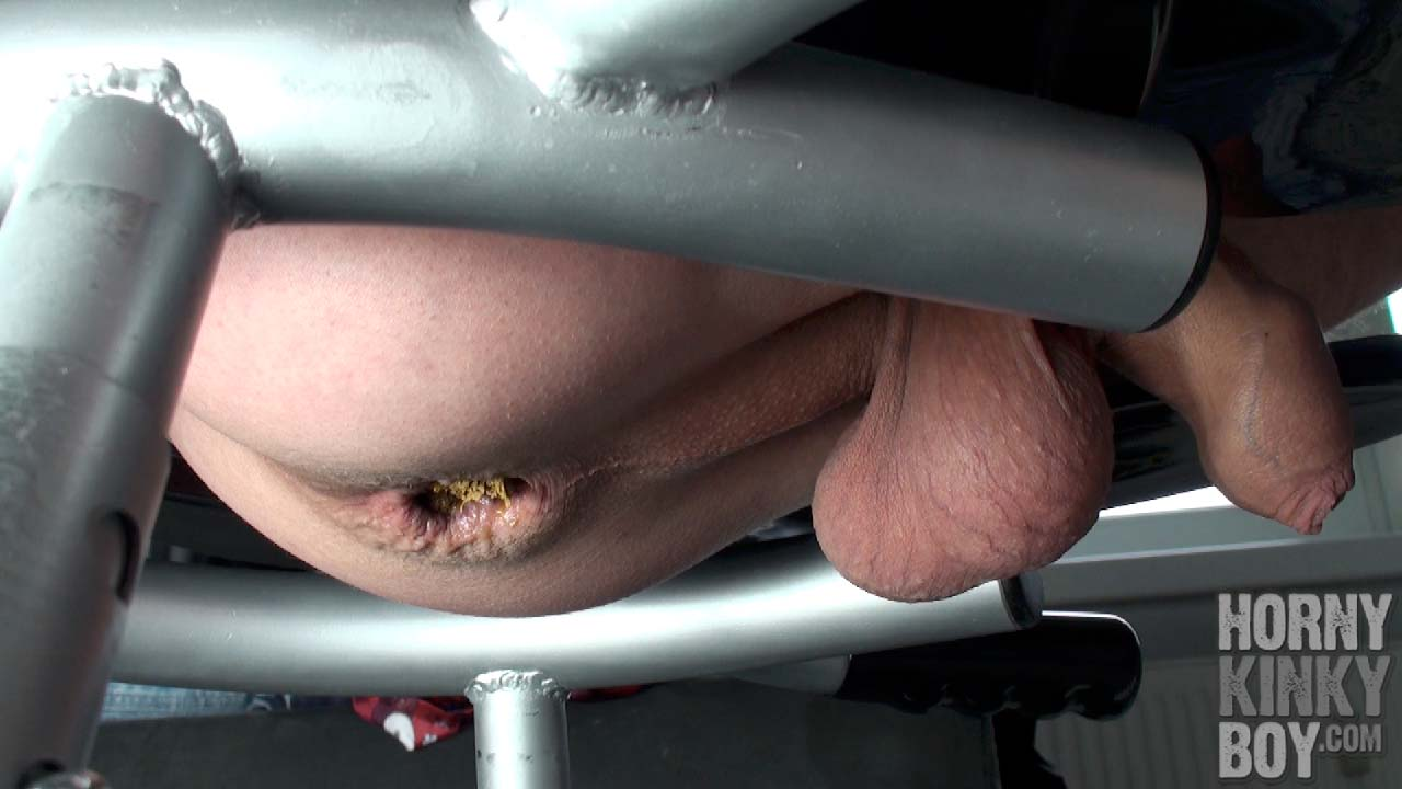 Ass Dumps A Bicolored Colon Shit Sausage